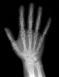 Cactus disease (paleo-induced mineral periostitis)   Radiology Case   Radiopaedia.org (Internet says what??)