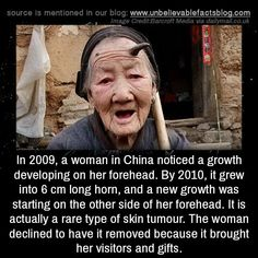 In a woman in China noticed a growth developing on her forehead. By it grew into 6 cm long horn, and a new growth was starting on the other side of her forehead. It is actually a rare type of skin tumour. The woman declined to have it. Wow Facts, Wtf Fun Facts, True Facts, Funny Facts, Creepy Facts, Strange Facts, Creepy Stuff, Interesting Facts About World, Fascinating Facts