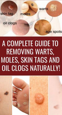 A Complete Guide To Removing Warts, Moles, Skin Tags and Oil Clogs Naturally! Foot Warts, Warts On Hands, Warts On Face, Mole Removal, Skin Tag Removal, Cancerous Moles, Home Remedies For Warts, Wart On Finger, Weight Gain