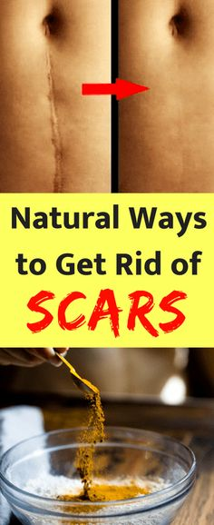 Scars are remnants of painful events that happened to us and sometimes, they are embarrassing. All scars tell a story and the media teaches us to love our scars because they are part of who we are. Sometimes, however, when you go out with friends or to a date or a party, you want to cover those so as to make a good physical impression. Creams and pills are good, but sometimes they have nasty side effects or they are too expensive and not many can afford them.