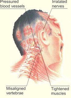Top 15 Home Remedies For Migraine
