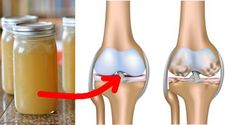 Reactive Arthritis is a type of arthritis that occurs as a result of an infection in the body. When one gets an infection the body reacts by triggering this form of arthritis. Typical infections triggering this form of arthritis are u Posture Fix, Bad Posture, Reactive Arthritis, Natural Headache Remedies, Natural Cures, Headache Relief, Pain Relief, Acupuncture, Health Remedies