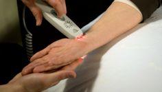 La fototerapia y su relación con la Fibromialgia