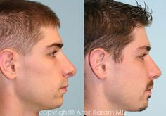 Considering a nose job? Rhinoplasty is a common procedure for Dr Amir Karam of Carmel Valley Facial Plastic Surgery in San Diego. Honey Face Cleanser, Rhinoplasty Before And After, La Jolla, Plastic Surgery, Nose Jobs, Facial, Men, Rhinoplasty