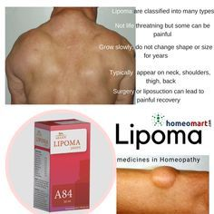 Ayurvedic Remedies, Homeopathic Remedies, Natural Health Remedies, Lipoma Removal, Homeopathy Medicine, Fat Burning Detox Drinks, Good Health Tips, Allergies, Natural Remedies