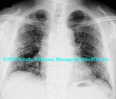10. 間質性肺炎 症例089:特発性肺線維症/通常型間質性肺炎 約3年後の胸部単純X線写真,『コンパクトX線アトラスBasic 胸部単純X線写真アトラス vol.1 肺』 Radiology