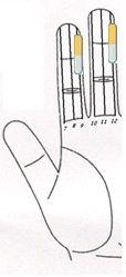 asma cardiaca a través Sujok 1 Magnetoterapia  Imán de barra (clavo lateral) Línea nº 9 - amarillo. Imán de barra (clavo lateral) Línea Nº 12 - amarillo