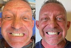 Nuvia Dental Implant Center - Dental Implant Options Dental Implant Surgery, Implant Dentistry, Teeth Implants, Dental Surgery, Cosmetic Dentistry, Vaseline Uses For Face, Infected Ingrown Hair, Coconut Oil Massage, Teeth In A Day