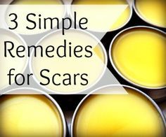 3 Simple Remedies for Scars - lemon/tomato juice before bed, Scar Salve = beeswax + shea butter + hemp seed oil + Vit E oil + lavender ess oil