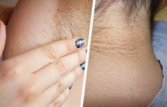 El cuello y las axilas van acumulando células muertas que al mismo tiempo van oscureciendo la piel. Conoce como blanquear naturalmente las axilas y cuello.