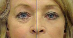 Un super aceiaceite de 2 ingredientes, el mejor remedio casero contra las arrugas alrededor de los ojos – La Salud Es Todo