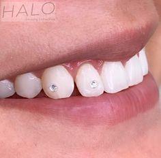 Crystal tooth gems done @halolongbeach Schedule online!