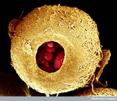 25 Amazing Microscopic Images Of The Human Body - Human embryo, three days old Human Embryo, Scanning Electron Microscope, Microscopic Photography, Micro Photography, Microscopic Images, Fotografia Macro, Macro And Micro, Extreme Close Up, Things Under A Microscope