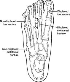 15 best ortho images medicine anatomy health NBCOT Ortho Tech toe fracture ankle sprain recovery high ankle sprain metatarsal fracture broken toe