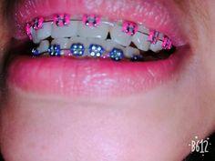 Ligas color salmon y morada Do you understand there ar U. Pink Braces, Fake Braces, Braces Girls, Dental Braces, Teeth Braces, Teeth Whitening System, Natural Teeth Whitening, Braces Problems, Cute Braces Colors
