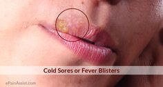 Cold Sores or Oral Herpes or Fever Blisters Read: http://www.epainassist.com/face-mouth-throat/cold-sores-or-oral-herpes-or-fever-blisters