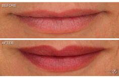 MicroArt Semi Permanent Makeup Lips