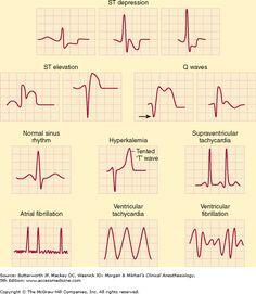 Nurse stuff I Medical Surgical Nursing, Cardiac Nursing, Pharmacology Nursing, Medical Anatomy, Cardiac Anatomy, Critical Care Nursing, Nursing School Notes, Emergency Medicine, Nursing Students