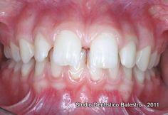 Studio Dentistico Balestro: Diastemi dentali
