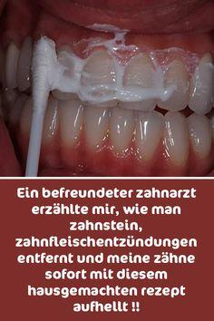 Ein befreundeter zahnarzt erzählte mir, wie man zahnstein, zahnfleischentzündungen entfernt und meine zähne sofort mit diesem hausgemachten rezept aufhellt !!
