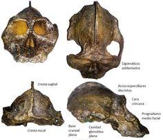 KNM WT 17000 Paranthropus aethiopicus, nicknamed Black skull