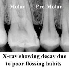 X-ray showing decay, the dark spots between the teeth, due to poor flossing habits. We call these flossing cavities because they would have been prevented if they would have flossed their teeth every day. Dental Hygienist, Dental Assistant, Dental Health, Dental Care, Dental Facts, Teeth Cleaning, Cavities, Dark Spots, Dentistry