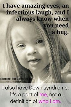 Support down syndrome