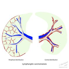 Lymphangitic carcinomatosis, or lymphangitis carcinomatosa, is the term given to tumour spread through the lymphatics of the lung, and is most commonly seen secondary to adenocarcinoma. http://radiopaedia.org/articles/lymphangitic-carcinomatosis
