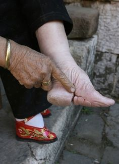 Foot binding.  The bones of the arch and toes were broken and the foot bound.  The toes often fell off.  The ideal size was 7 cm (2.45 inches).  The practice was officially outlawed in China in 1912.