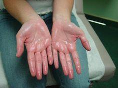 ¿Cansado de La Hiperhidrosis? Descubre Como Tratar La Hiperhidrosis de Forma Natural. Dile Adios Para Siempre a La Hiperhidrosis.