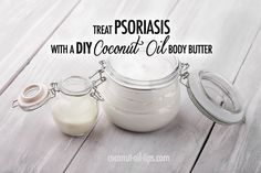 Coconut Oil Psoriasis Remedy with DIY Body Butter! - Coconut Oil Tips