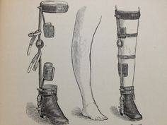 ca. 1890-1905. An early treatment and partial prevention for bowleggedness (Blount's disease or genu varum).  Genetics, poor nutrition, and certain diseases such as polio may lead to this deformed limb condition.  Its most common cause was rickets.