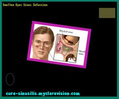 Swollen Eyes Sinus Infection 093943 - Cure Sinusitis