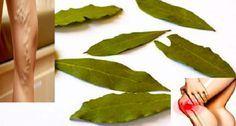 Natural Mixture From Varicose-Pain to Migraine, Varicose Veins - Kopfschmerzen Varicose Vein Remedy, Varicose Veins, Home Remedies, Natural Remedies, Natural Treatments, Spa Treatments, Herbal Remedies, Natural Colon Cleanse, Colon Detox