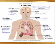 Main #Symptoms of #Diabetes:The most common symptoms are related to hyperglycemia (high blood sugar levels), especially the classic symptoms of diabetes: frequent urination and thirst.