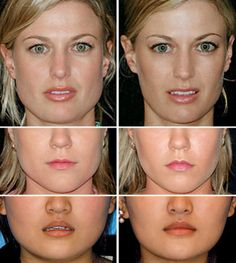 before after lips Perfect Your Pout The Face Guide: Lippenpflege Marie Osmond, Botox Fillers, Lip Fillers, Jaw Reduction Surgery, Facial Esthetics, Botox Before And After, Botox Alternative, Perfect Lips, Cosmetic Procedures