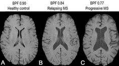 See the ventricles are much bigger in MS because parenchyma (paren key-ma) is being lost  (BBF) Brain parenchymal fraction. This measures the space filled by the parenchyma (the tissue of the grey and white matter) as fraction of the whole brain voulume which contains fluid filled spaces. As the nerve tissue is lost the fluid filed spaces become bigger Multiple Sclerosis Research: Education. Whats an MRI