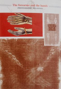 Photograph showing mid-section of the Holy Shroud of Turin, and how the nails may have passed through the hands/wrists of the Man in the Holy Shroud of Turin.