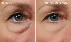 dramatically reduces the appearance of under-eye bags within hours.  Discover this at-home, non-invasive solution to unsightly under-eye bags. It works immediately. No surgery. No needles.
