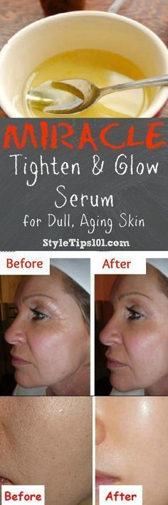 Serum to tighten and add healthy glow to your skin!Give it a go, amaze yourself, be the envy of MANY!