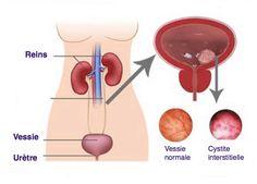 Dans cet article, nous allons vous expliquer comment guérir naturellement la cystite, pour contre-attaquer dès les premiers symptômes.
