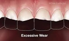 An individual may need corrective jaw surgery if he or she is experiencing: excessive wear of the #teeth