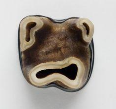 Warwick Freeman  Warwick Freeman, Brooch: Face Ache 2007, Horse tooth, sterling silver, 2,5 x 2,5 x 2 cm
