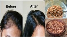 Why Are Flax Seeds Good For Hair Growth? Great Source Of Vitamin E Vitamin E is one of the best vitamins you could use for hair growth because of its strong antioxidant properties which prevent hair a