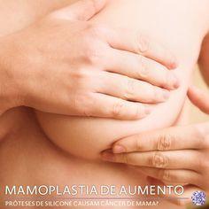 Para as mulheres que tem medo de que o câncer de mama possa ser formado pelo silicone das próteses mamárias, saibam que isso é um mito! O silicone usado na cirurgia de mamoplastia de aumento é medicinal, próprio para este fim. Além disto, não existem estudos, até agora, que consigam provar a relação das próteses de silicone com câncer de mama. Saiba mais sobre os mitos e verdades da mamoplastia de aumento, clicando aqui!