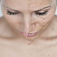 W zakresie dermatologii proponujemy naszym Klientom dermatoskop - www.consultronix.pl