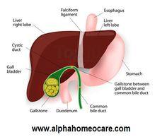 পিত্তথলির পাথর, কারণ, লক্ষণ, রোগ নির্ণয়, হোমিওপ্যাথি চিকিৎসা এবং ব্যবস্থাপনা ( Gallstones, Causes, Symptoms, Diagnosis, Homeopathy treatment and Management )   আলফা হোমিও কেয়ার । Homeopathy
