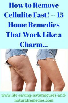 Here's a list of the all-time best home remedies for quick cellulite removal in no particular order. Use each of these stunning natural remedies & finally get rid of that stubborn cellulite on your thighs, legs & buttocks for good!life-saving-n. Thigh Cellulite, Causes Of Cellulite, Cellulite Wrap, Cellulite Scrub, Cellulite Exercises, Cellulite Remedies, Reduce Cellulite, Cellulite Workout, Eczema Remedies