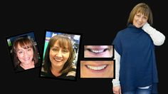 If you're looking for the best dentist Melbourne CBD? We offer General, Restorative and Cosmetic Dentistry General Surgery, Porcelain Veneers, Smile Makeover, Melbourne Cbd, Best Dentist, Whitening Kit, Cosmetic Dentistry, Your Smile, 18 Months