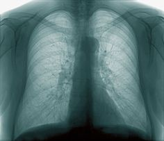 Research identifies the beginnings of COPD